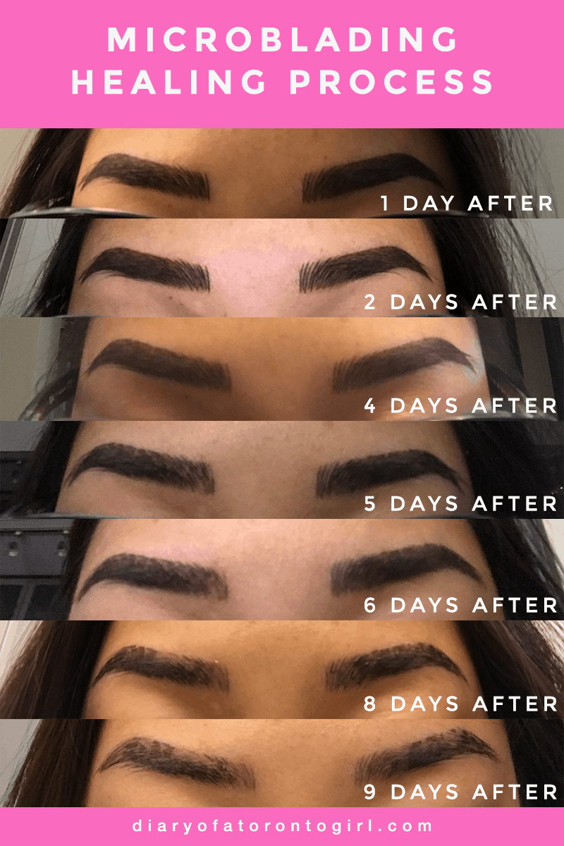 Microblading day by day healing process