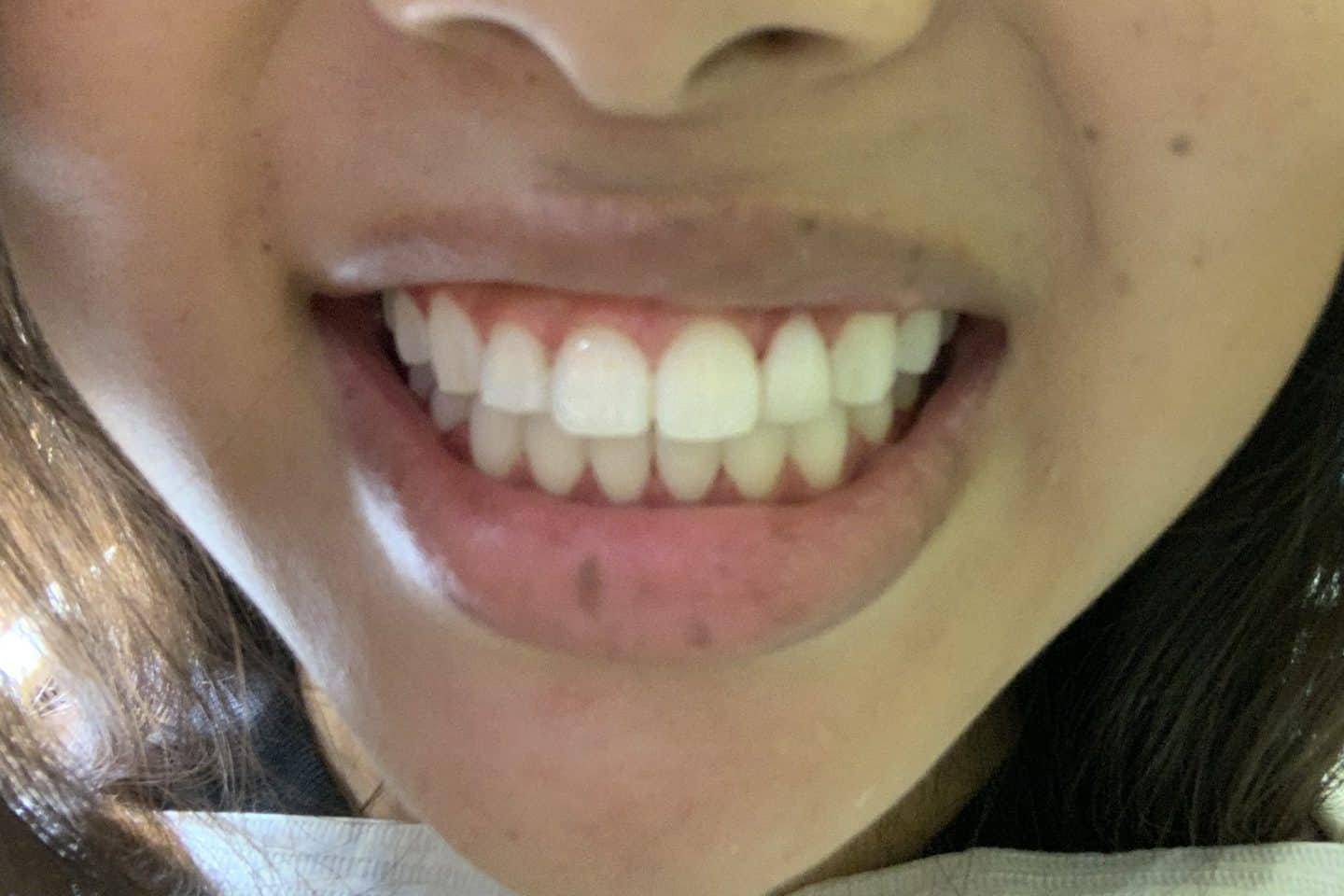 A review of the Philips Zoom teeth whitening procedure, including everything you need to know before and after getting it done!