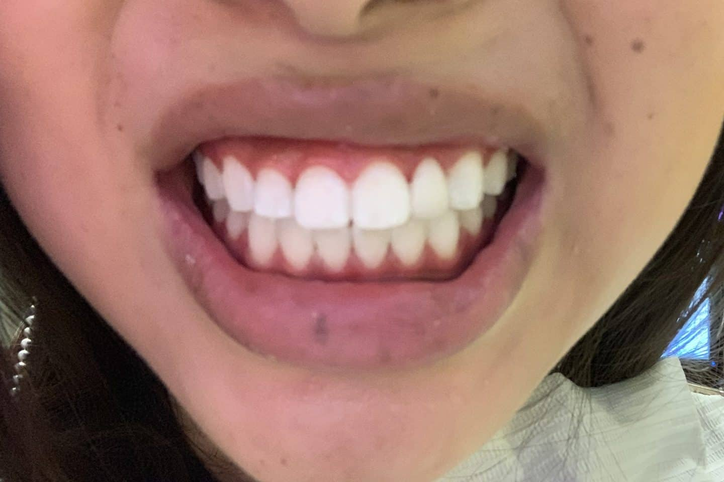 My Philips Zoom Teeth Whitening Review Experience