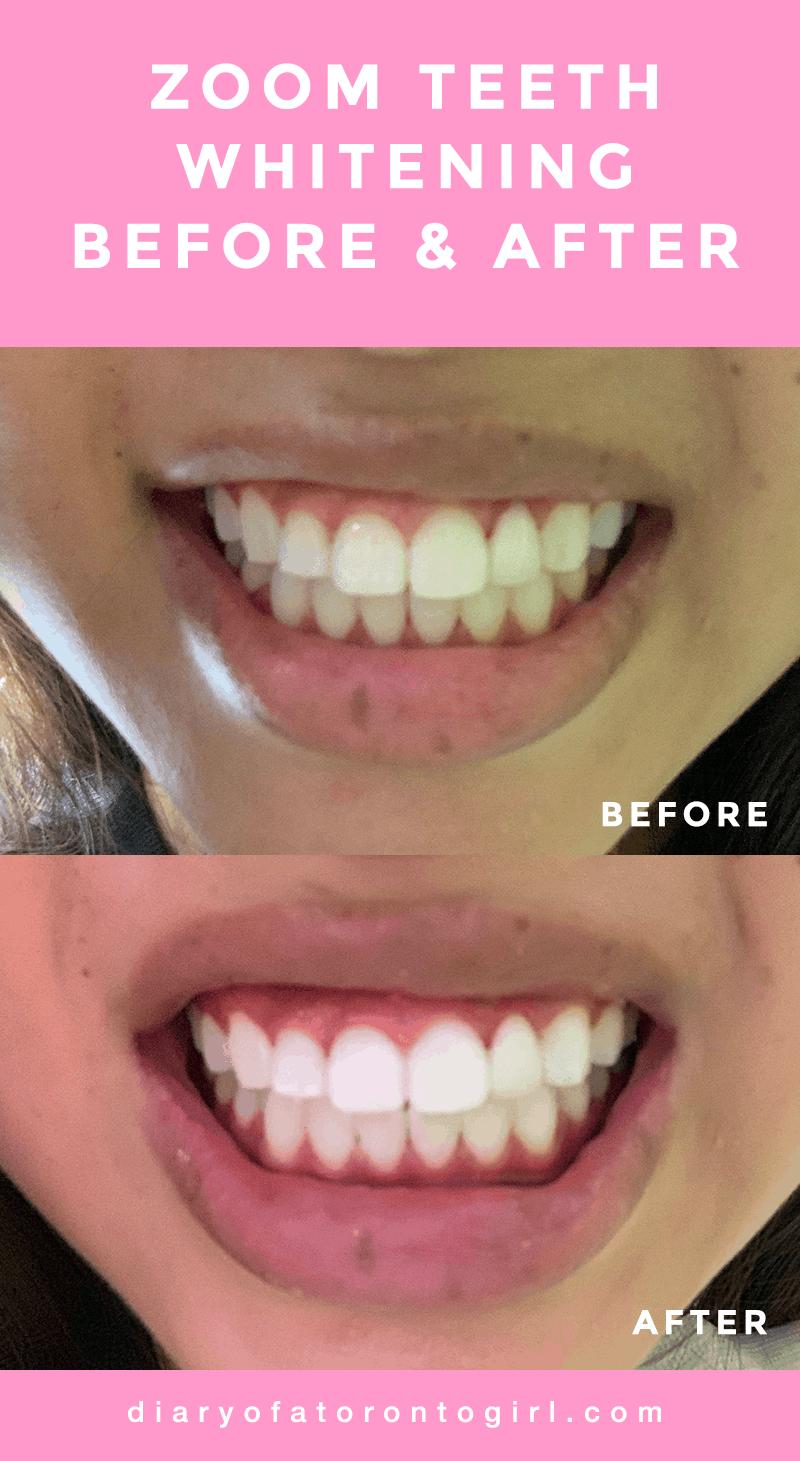 Philips Zoom teeth whitening at Altima Dental Toronto